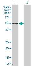 H00007538-D01P - Tristetraproline (TTP)