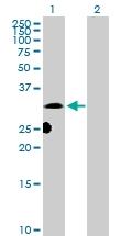 H00007802-D01P - DNALI1