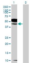H00007850-D01P - CD121b / IL1R2