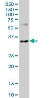 H00007852-M04 - CD184 / CXCR4