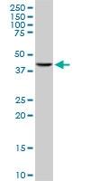 H00007867-M01 - MAPKAP Kinase-3