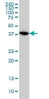 H00007867-M02 - MAPKAP Kinase-3