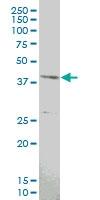 H00007867-M06 - MAPKAP Kinase-3