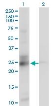 H00008209-M01 - ES1 protein homolog