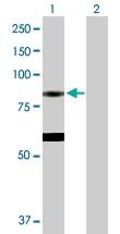 H00008288-D01P - Eosinophil peroxidase