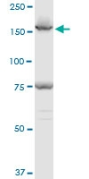 H00008411-A01 - Early endosome antigen 1
