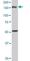H00008411-M03 - Early endosome antigen 1