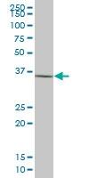 H00008416-B01P - Annexin A9 / ANXA9