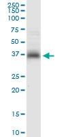 H00008417-D01 - Syntaxin 7 / STX7