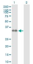 H00008417-D01P - Syntaxin 7 / STX7