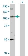 H00008495-D01P - Liprin-beta-2