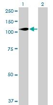 H00008525-B01P - DAG kinase zeta