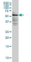 H00008526-M03 - DAG kinase epsilon