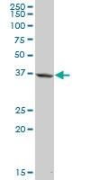 H00008542-B01P - Apolipoprotein L1 (Apo L1)