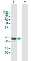H00008542-D01 - Apolipoprotein L1 / APOL1