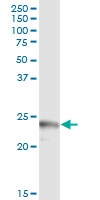 H00008542-D01 - Apolipoprotein L1 (Apo L1)