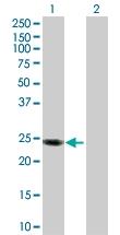 H00008542-D01P - Apolipoprotein L1 (Apo L1)