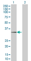 H00008614-B01 - Stanniocalcin 2 / STC2