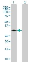 H00008676-B01P - Syntaxin 11 / STX11