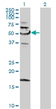 H00008723-B01P - Sorting nexin-4 (SNX4)