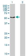 H00008723-D01P - Sorting nexin-4 (SNX4)
