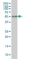 H00008723-M01 - Sorting nexin-4 (SNX4)
