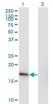 H00008724-M10 - Sorting nexin-3 (SNX3)