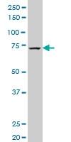 H00008833-A01 - GMP synthetase / GMPS