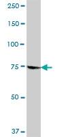 H00008833-B01P - GMP synthetase / GMPS