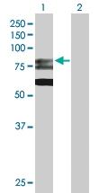 H00008833-D01P - GMP synthetase / GMPS