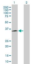 H00008843-B01P - Nicotinic acid receptor 2