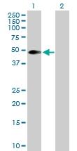 H00008877-B01P - Sphingosine kinase 1 (SPHK1)