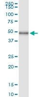 H00008877-D01 - Sphingosine kinase 1 (SPHK1)