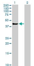 H00008877-D01P - Sphingosine kinase 1 (SPHK1)