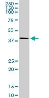 H00008877-M01 - Sphingosine kinase 1 (SPHK1)