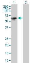 H00008908-B01 - Glycogenin-2 (GYG2)