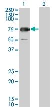 H00008908-M04 - Glycogenin-2 (GYG2)