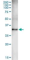 H00008942-D01 - Kynureninase