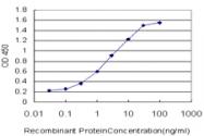 H00008942-M02 - Kynureninase