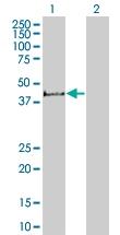 H00008987-B01 - STBD1 / Genethonin-1