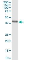 H00008987-D01 - STBD1 / Genethonin-1