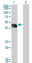 H00008987-M03 - STBD1 / Genethonin-1