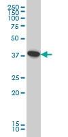 H00009114-M01 - ATP6V0D1