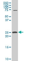 H00009144-A01 - Synaptogyrin-2 / SYNGR2