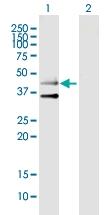 H00009177-B01P - Serotonin receptor 3B (HTR3B)