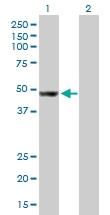 H00009179-B01P - AP4 complex subunit mu-1 / AP4M1
