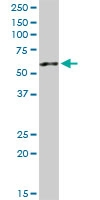 H00009179-D01P - AP4 complex subunit mu-1 / AP4M1