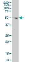 H00009179-M01 - AP4 complex subunit mu-1 / AP4M1