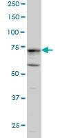 H00009201-M03 - Doublecortin-like kinase 1