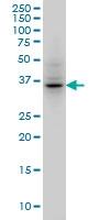 H00009212-M01A - Aurora kinase B